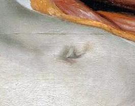 Rembrandt, Lezione di anatomia del dottor Tulp, 1632-ombelico